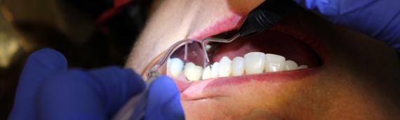 5 Reasons Why a Career As a Dental Hygienist is Profitable